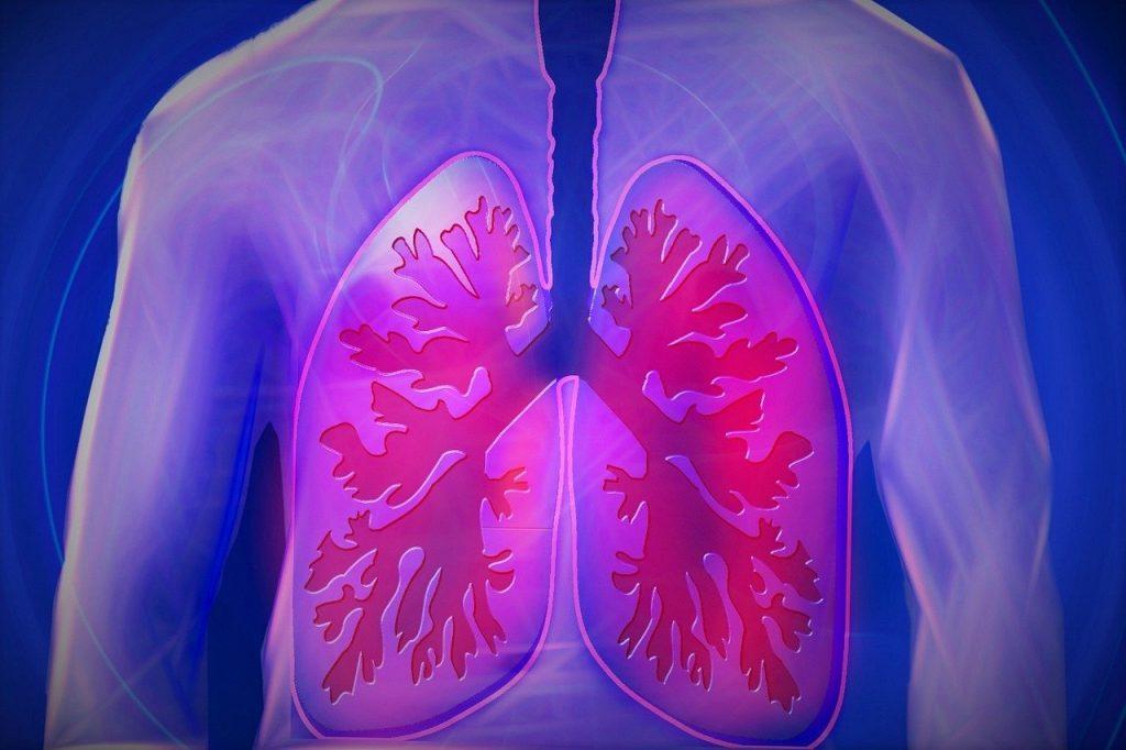 upper body, lung, copd-944557.jpg